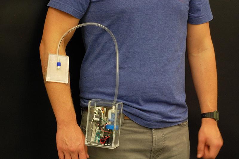 """""""可穿戴便携式发明为治疗抗药性感染 伤口提供了选择"""